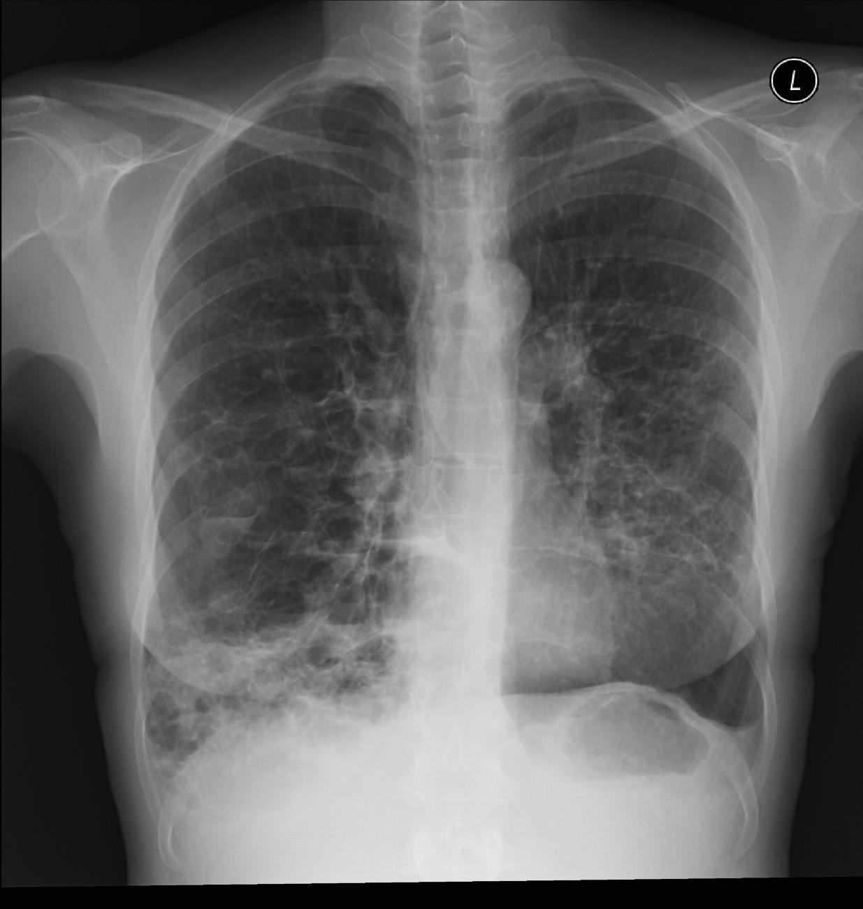Röntgenfall des Monats